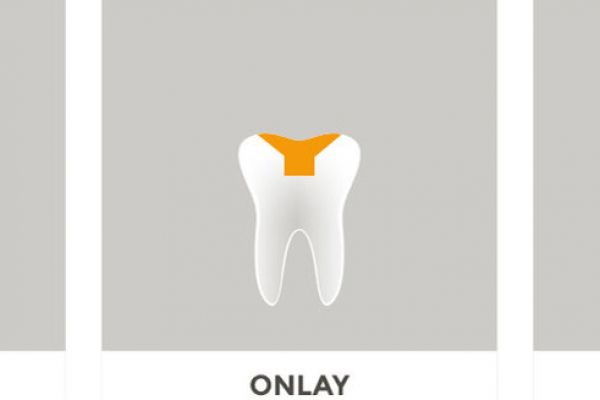 Inlay/ Onlay/ Overlay